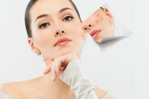 मुहासे के दाग धब्बों से निजात के घरेलू उपाय remove black spots on face in hindi