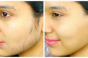 चेहरे के बाल हटाने के उपाय how to remove face hair in hindi